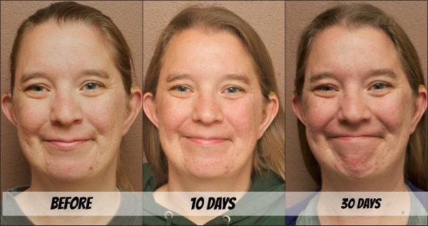 Mary Kay Clear Proof Acne System Review 10 Day And 30 Day Results